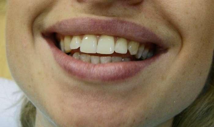 фото отбеливание зубов в стоматологии