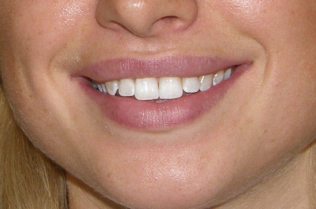 Фото отбеливание зубов в стоматологии 2
