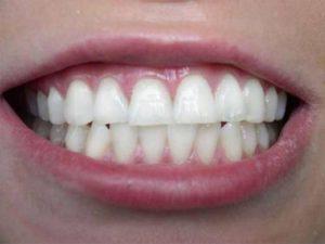 Фото эффект от отбеливание зубов
