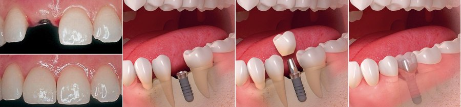 этапы установки импланта