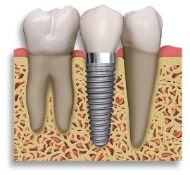 Фото зубной имплонтант
