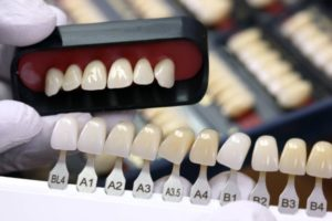 Восстановаление цвета зубов