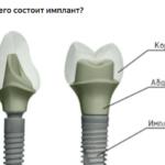 Из чего состоит имплант