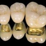 Зубной мост на 1 зуб