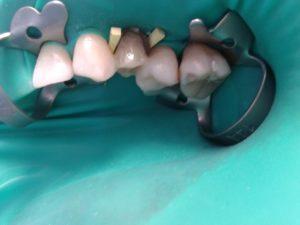 Цена (стоимость) имплантации зуба