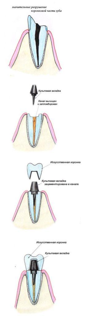 коронка металлокерамическая на имплант