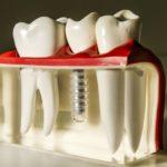 сколько стоит имплант зуба под ключ