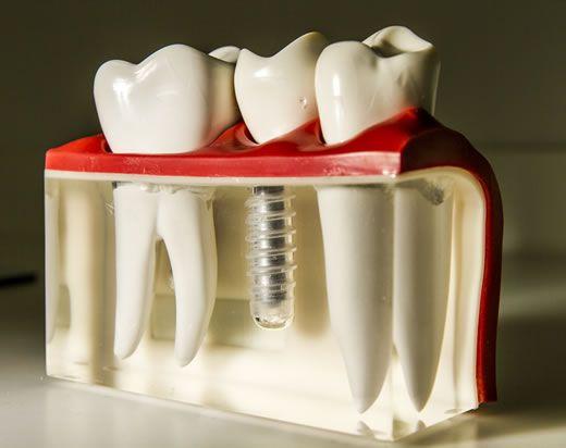 Имплантация зубов сразу после удаления