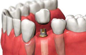 способы установки имплантов зуба
