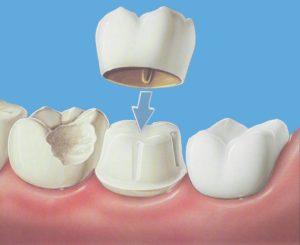 металлокерамика на зуб