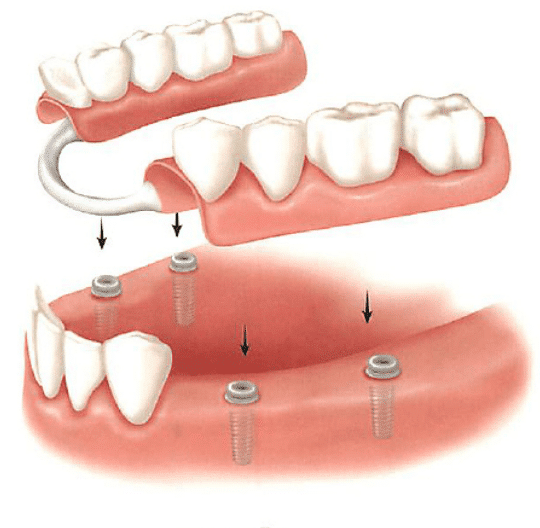 Съемные протезы на имплантах