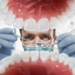 Удаление зуба мудрости цена