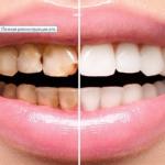 Стоматологическая клиника - реставрация и протезирование зубов недорого