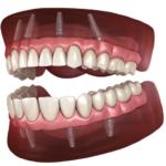 Иvплантация зубов all on 4