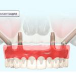 Протезирование зубов отзывы