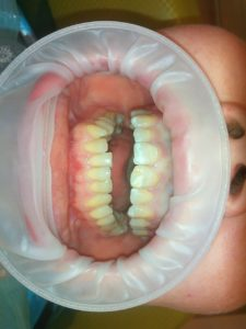 Лечение десен зубов