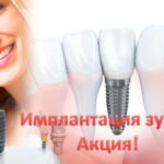 Акция имплантация зуба