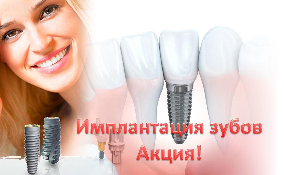 Цена зубного импланта Акция