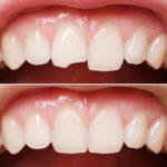 Ретаврация передних зубов