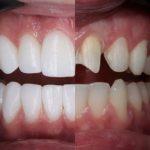 Восстановление и реставрация зубов - коронка