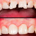 Восстановление зуба композитной смолой