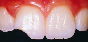 Реставрировать зуб