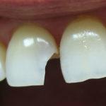 Нарастить зуб