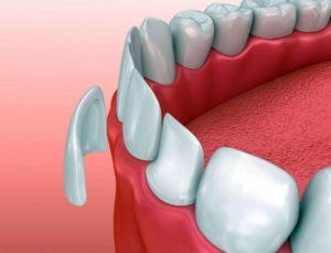 Реставрация зуба фронтальная - передние зубы