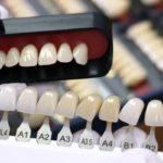 Отбеливание зубов стоимость