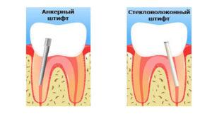Реконструкция зуба с использованием штифта