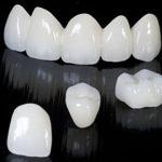 Мостовидный несъёмный зубной протез