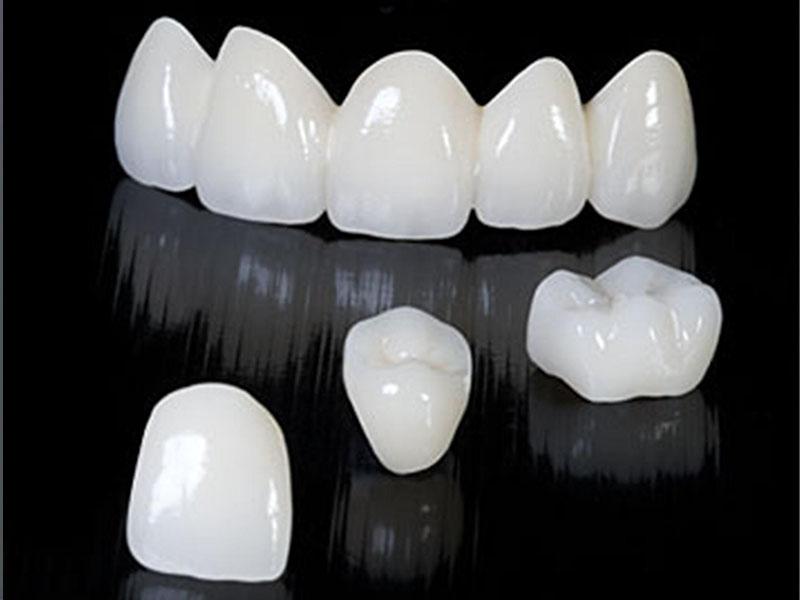 Цена реставрация зубов