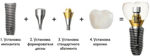 Поставить коронку на имплант