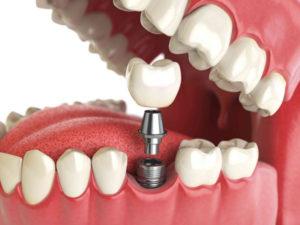 корока на зуб