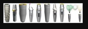 Рейтинг зубных имплантов