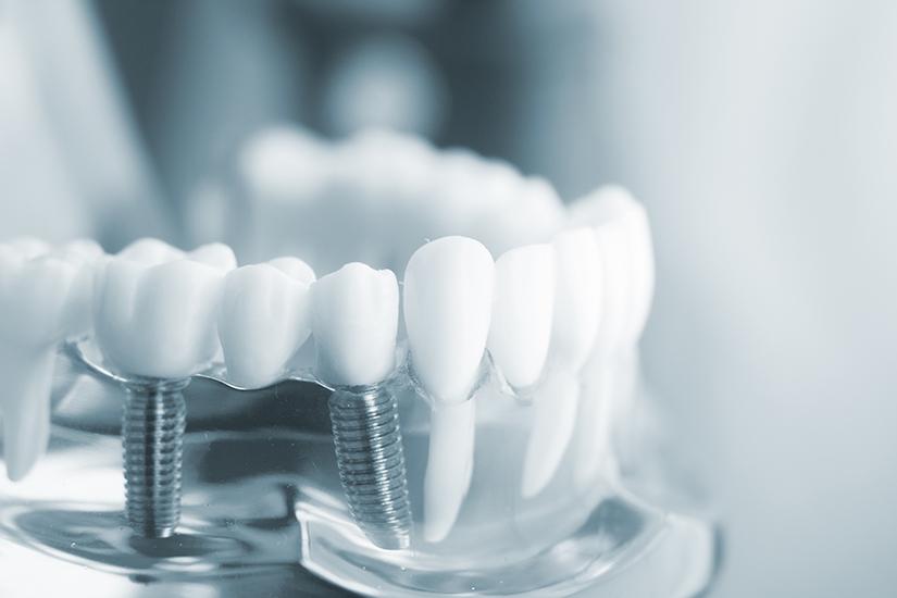 Зубные импланты недостатки и преимущества