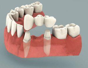 Несъемный зубной протез на имплантах