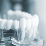 дентальные зубные импланты