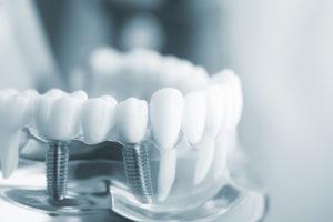 Мостовидные зубные протезы установка