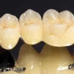 Стоимость зубных протезов
